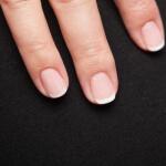 Ernaehrungsdefizite an den Fingernaegeln erkennen