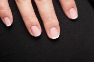 Ernährungsdefizite an den Fingernägeln erkennen
